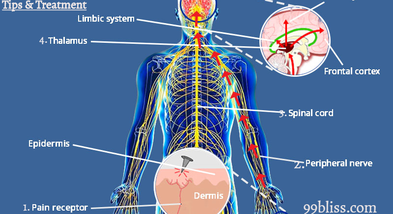 Body Pain Types, Causes, Prevention Tips & Treatment