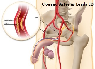 Clogged Arteries Lead ED
