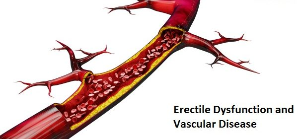 Erectile Dysfunction and Vascular Disease