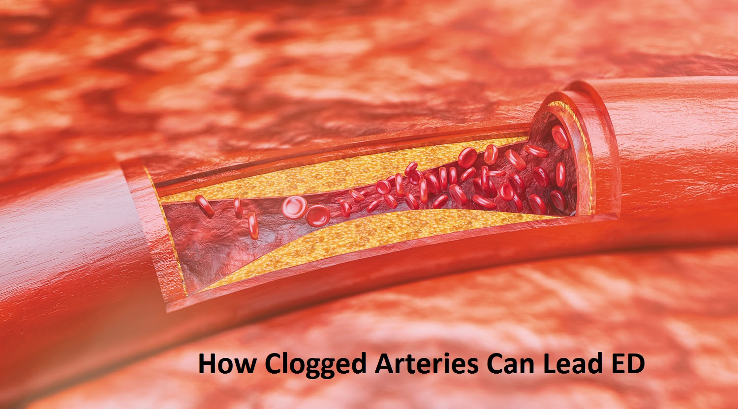 How Clogged Arteries Can Lead ED: Causes, Symptoms & Home Remedy