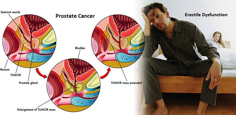 Prostate Cancer and Erectile Dysfunction