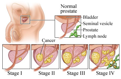 Prostate Cancer Symptoms Stages