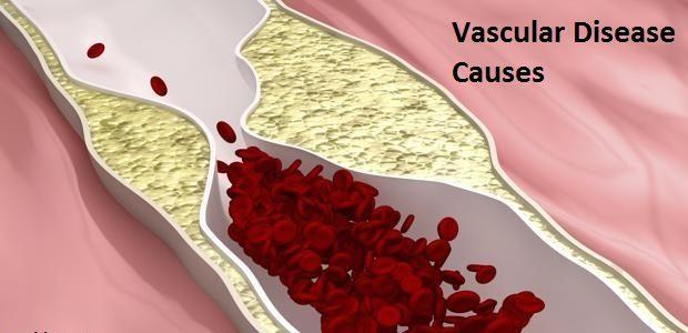 Vascular Disease Causes
