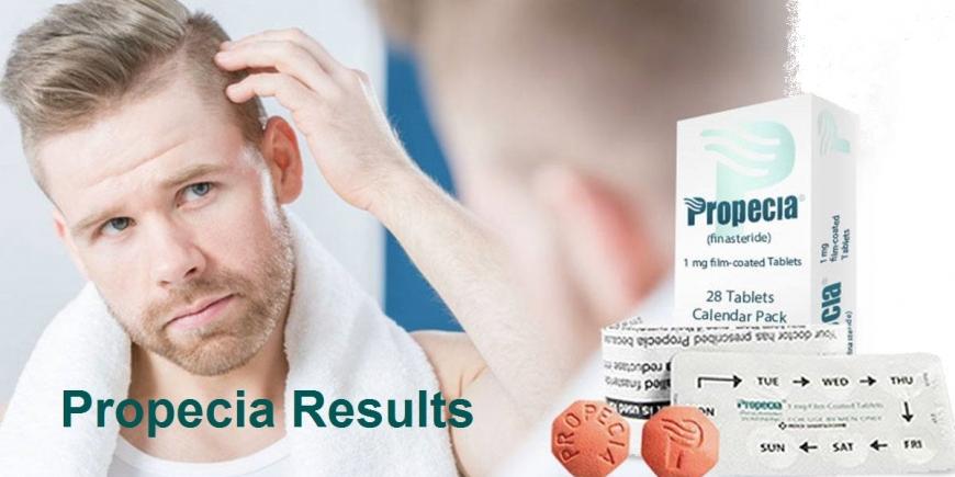 Propecia (Finasteride) Results